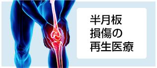 【さかもとクリニック】半月板損傷に対する再生医療