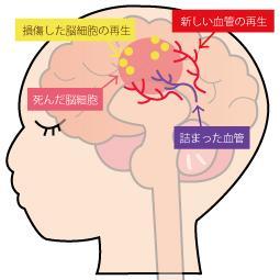 脳卒中(脳梗塞・脳出血・くも膜下出血)の再生医療