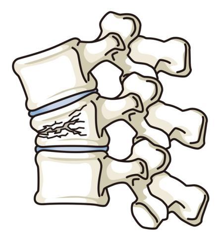 脊髄損傷の再生医療